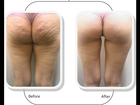 How To Get Rid Of Cellulite -The Best Cellulite Removal Method in 2015