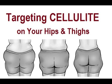 Target Cellulite on Your Hips & Thighs