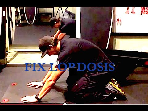Lower Back Pain from Lordosis? Easy exercise to fix
