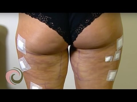 Laser Treatment for Cellulite // NEWS