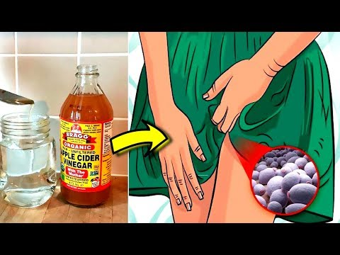 Apple cider vinegar for yeast infection treatment at home – Successful cure