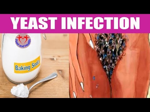 How to Use Baking Soda for Yeast Infection