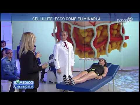 Il mio medico – Cellulite: ecco come eliminarla