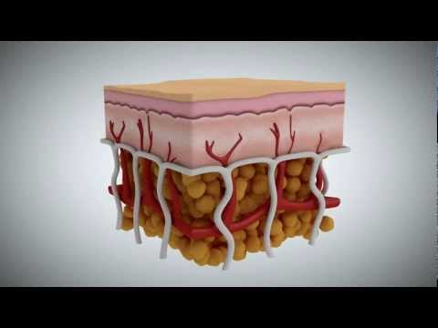 Cellulite: What It Is, What Causes It, and How to Treat It
