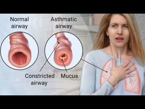 ଆସ୍ଥମା ରୁ କେମିତି ପାଇବେ ମୁକ୍ତି | ପ୍ରଥମ ଥର ପାଇଁ ଓଡ଼ିଆରେ | Kills Asthma Permanently And Naturally