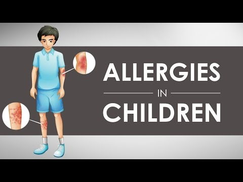 Allergies in Children I 1