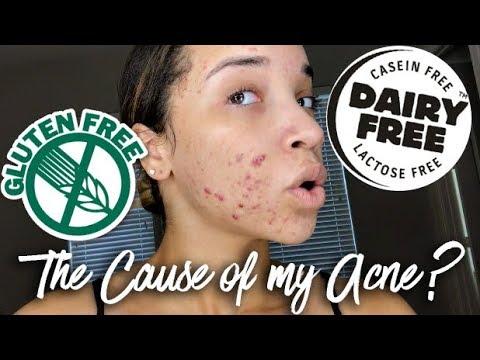 Acne Update #1 | My Food Allergies