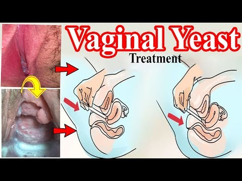 Yeast Infection Treatment | Vaginal Yeast Infection Natural Treatment | Vaginal Thrush Infection