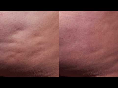 Proven Cellulite Solution at Nayak Plastic Surgery