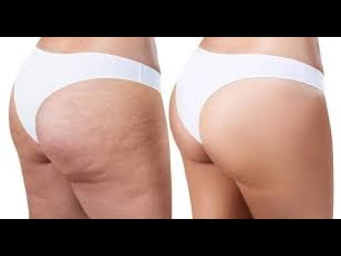 How To Get Rid of Cellulite Permanently | Cellulite Treatment