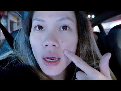 Pimple Break Outs Cause By Pregnancy Hormones!!!!! | Minnie's VLOG 619