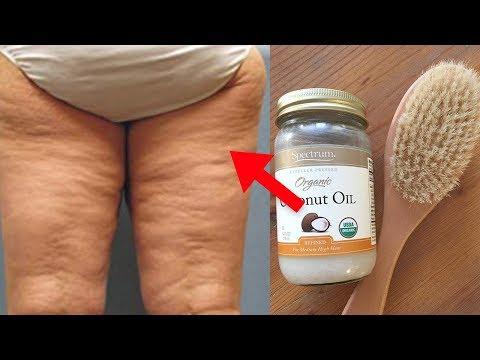 9 verrückte Möglichkeiten um Cellulite los zu werden!