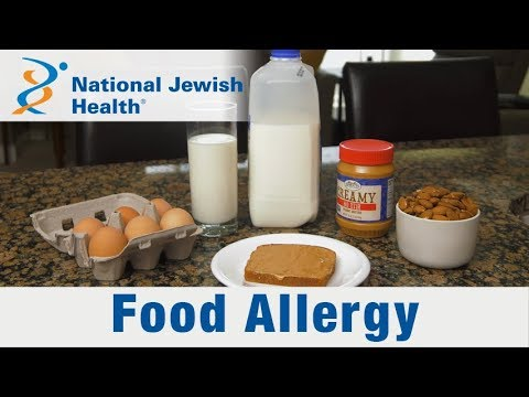 What Are Food Allergies and How Are the Treated?