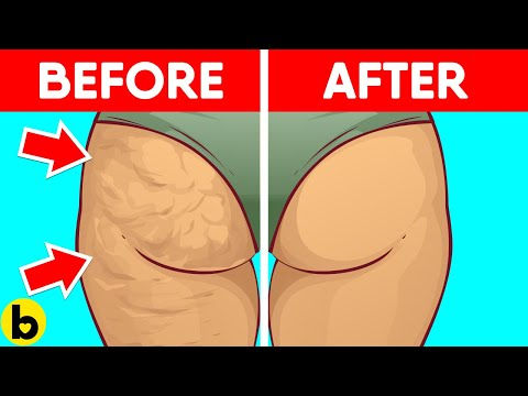 5 Ways To Reduce Cellulite On Your Body