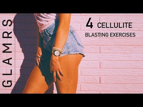Cellulite Removal Exercises – Get Rid of Cellulite on Butts, Thighs and Legs   No Gym Workout