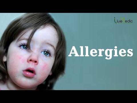 DIY: Best Cure For Kids Allergies with Natural Home Remedies   LIVE VEDIC