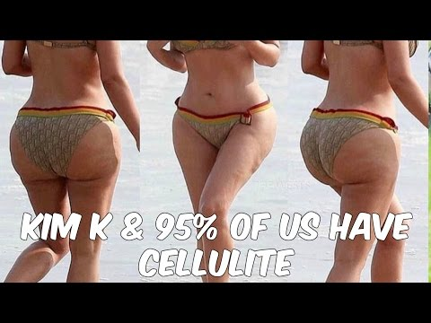 Kim Kardashian Celeb Cellulite | Self-Care Sunday