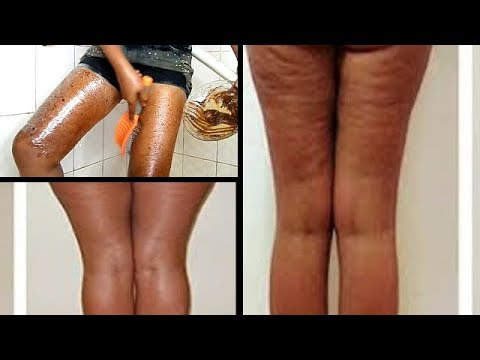USE THIS TO GET RID OF CELLULITE FAST AND VERY EFFECTIVE RESULT IN 5 DAYS