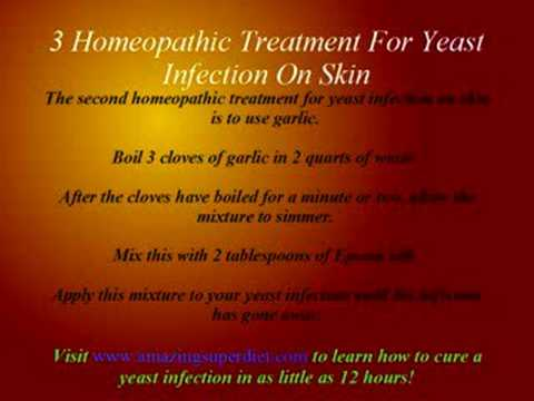 3 Homeopathic Treatment For Yeast Infection On Skin