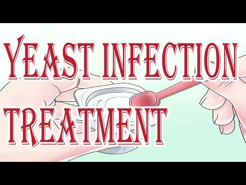 Yeast Infection Treatment : Natural Treatment For Yeast Infection