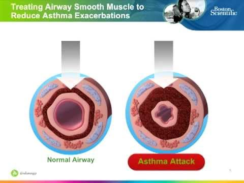Bronchial Thermoplasty: Procedure to Improve Asthma Control for Severe Asthma Patients