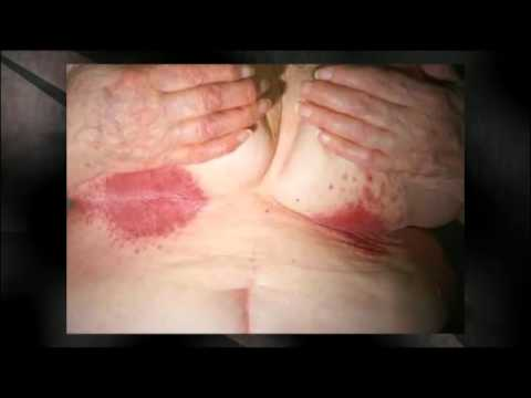 Yeast infection in women- Shocking images