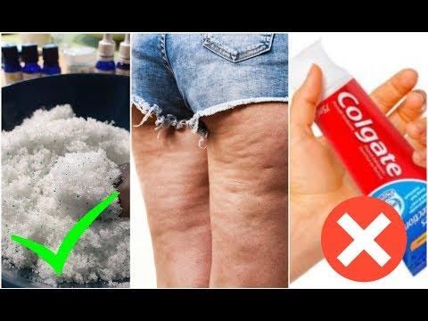 NON usate COLGATE per eliminare la cellulite! Fate la mia routine naturale ed! Pochi step FACILE