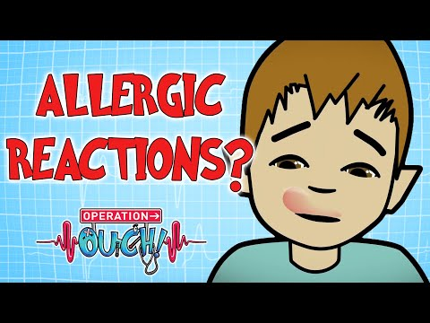 What are Allergic Reactions? | Operation Ouch
