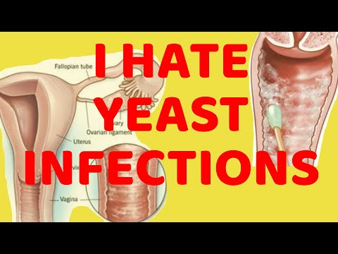 F*CK YEAST INFECTIONS!!!!!!!! | KELSEY DARRAGH