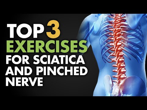 Top 3 Exercises for Sciatica and Pinched Nerve