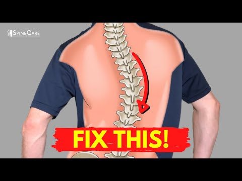 How to Relieve Your Scoliosis Back Pain in 30 SECONDS