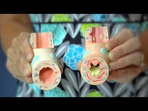 Asthma Discharge Education