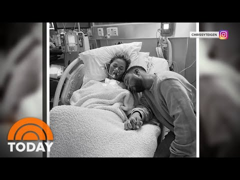 Chrissy Teigen Suffers Miscarriage After Pregnancy Complications | TODAY