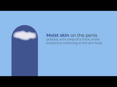 Candidia (yeast infection) can affect men too!