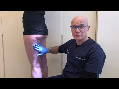 Inquadramento diagnostico della cellulite – Dott. Fabio Chemello