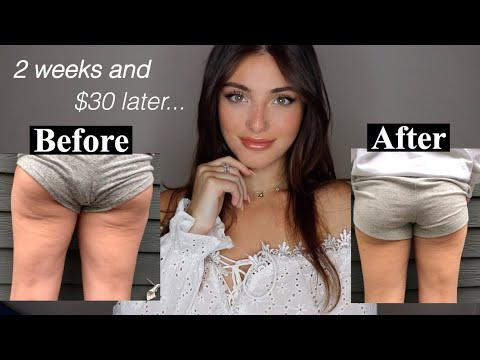 HOW I GOT RID OF MY CELLULITE AT HOME…I cnt believe this rlly worked lol