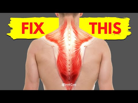 How to Fix a Tight Upper Back in 30 SECONDS