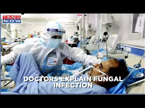 Doctors explain deadly fungal infection after recovering from covid