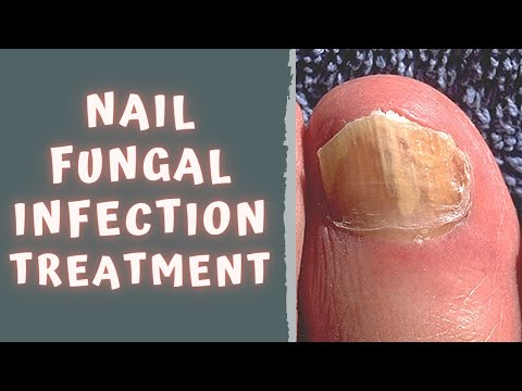 HOW TO TREAT FUNGAL NAIL INFECTION – TINEA UNGUIUM / ONYCHOMYCOSIS