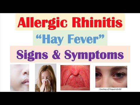 Allergic Rhinitis (Hay Fever & Seasonal Allergies) Signs & Symptoms (& Why They Occur)